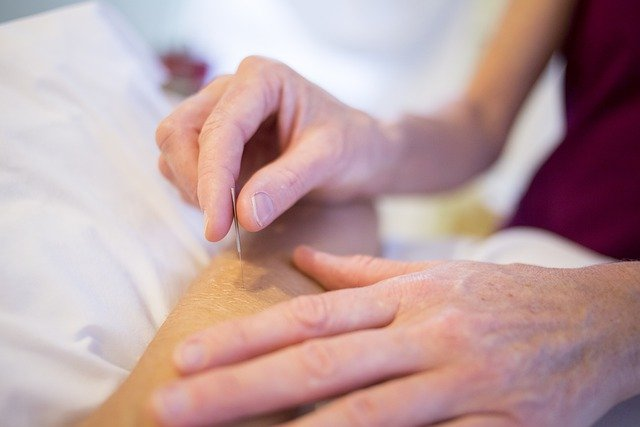 acupuncture velonismos physicaltherapies hand